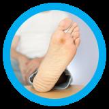 Dijabetesno-stopalo-h